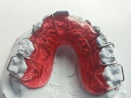 Best Deals on Invisalign 9